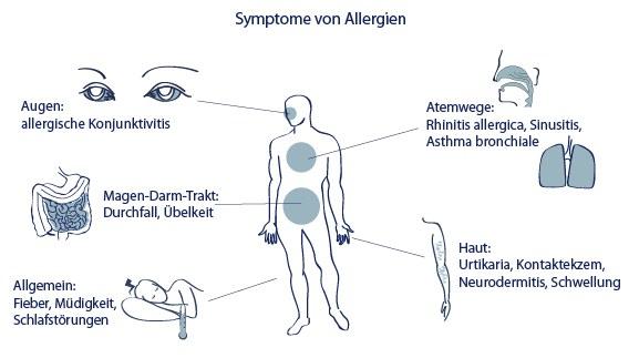 allergien symptome allergietest therapie info medizin. Black Bedroom Furniture Sets. Home Design Ideas