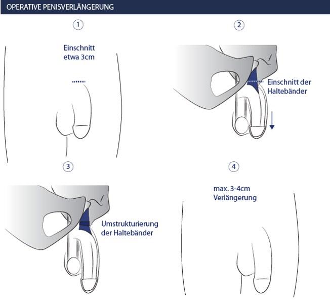 Penis Injektion