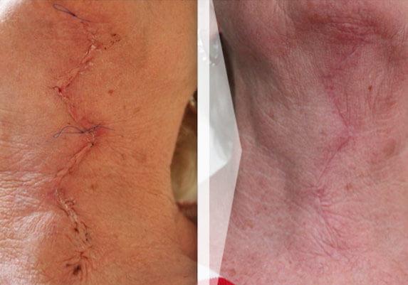 Narben entfernen mit Laser - Narbenkorrektur | info Medizin